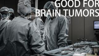 CBDが脳腫瘍に対して良好な結果が!GBM(多形神経膠芽腫)への研究すすむ